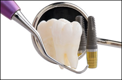 Dental Implants erie pa