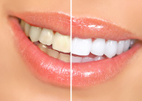 Dental Whitening erie pa